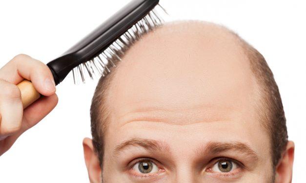 Perdita capelli? Un problema per l'autostima!