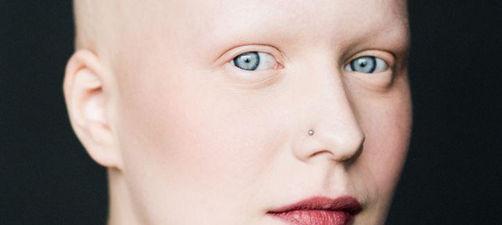 Chemioterapia e perdita dei capelli! Come proteggerli?