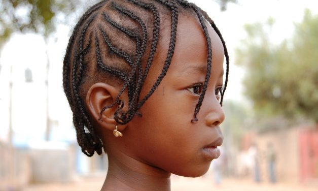 L'alopecia da trazione – Cos'è e come viene?