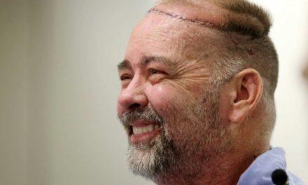 In America – Primo trapianto cranio e cuoio capelluto