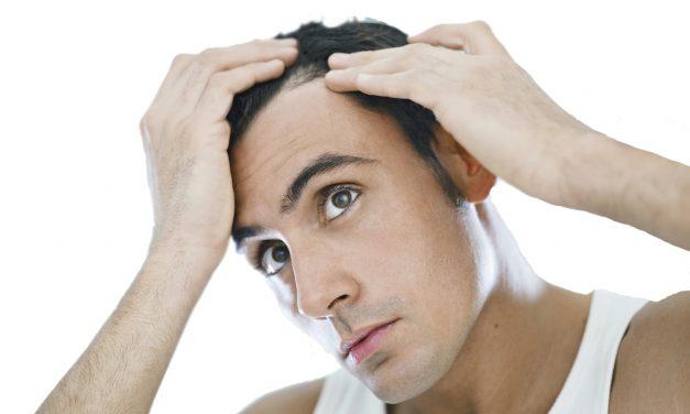 Stai perdendo troppi capelli? – Telogen effluvium?