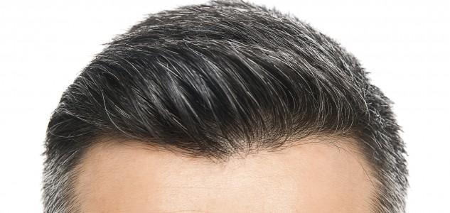 Perdita capelli frontale donne