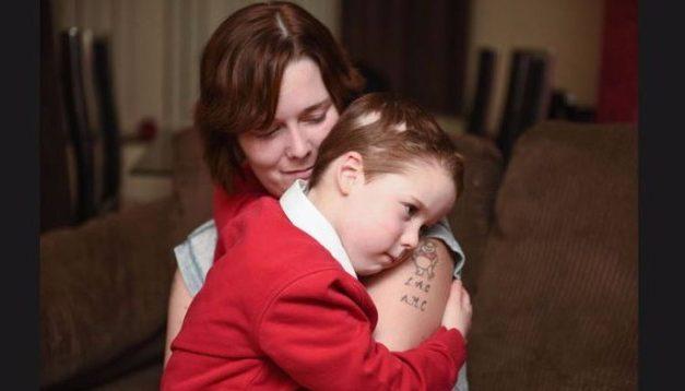 La calvizie in 287 geni ereditati dalle mamme
