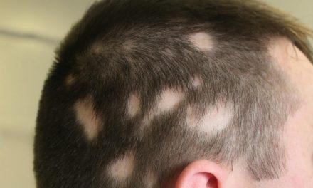 Le alopecie cicatrizzali