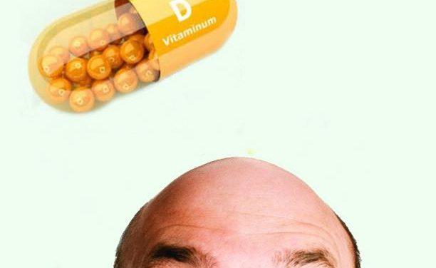 La vitamina D e la Calvizia