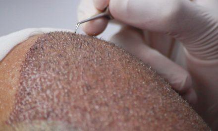 L'estrazione delle unità follicolari nel trapianto capelli F.U.E – come avviene ?