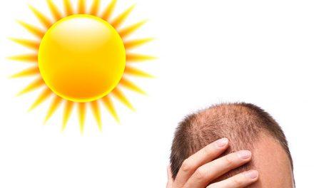 La caduta dei capelli aumenta in estate?