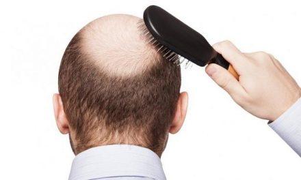 I capelli caduti possono ricrescere?