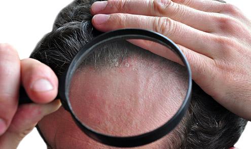 L'alopecia psoriasica, che cosa è?