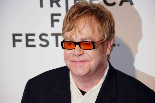 Elton John e il trapianto capelli!