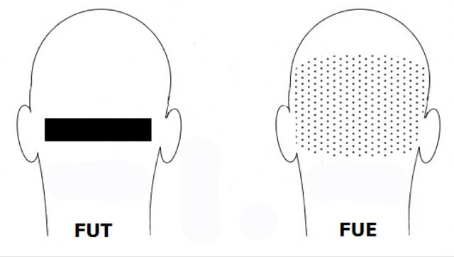 Differenza tra tecnica FUE e FUT