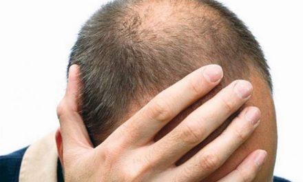 L'alopecia iatrogena