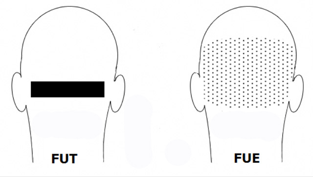 Autotrapianto di capelli: differenze tra FUT e FUE