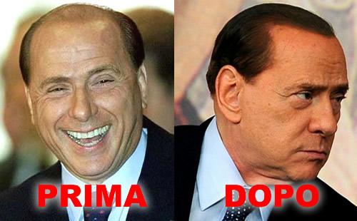 Berlusconi e il trapianto di capelli