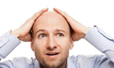Le cause dell'alopecia