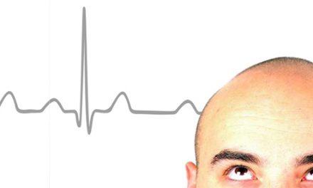Calvizie – il segnale di un cuore a rischio