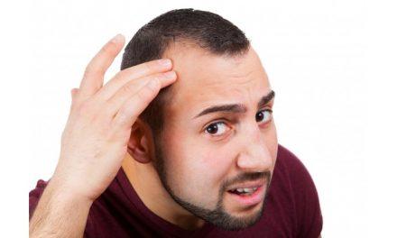 Stempiatura: Inizio della caduta dei capelli