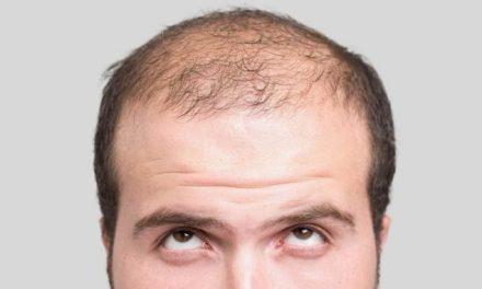 Perdita capelli e Star Medical Center