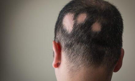 Alopecia – ne soffre un italiano su tre