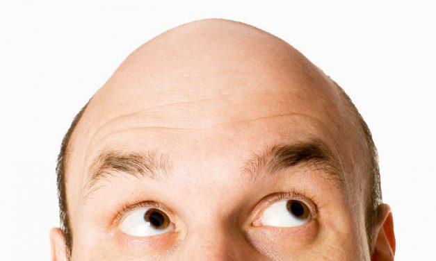 Calvizie – le origini del trapianto di capelli