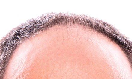 L'alopecia fronto-parietale maschile