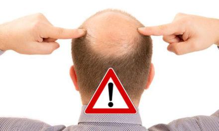 Rischi del trapianto dei capelli