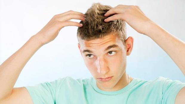 I giovani perdono i capelli sempre prima