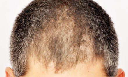Alopecia da ustione – trapianto capelli