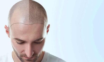 Trapianto di capelli: il prelievo