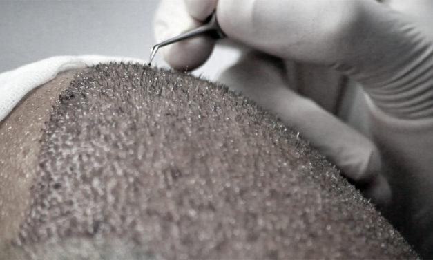 Trapianto di capelli: i microfori