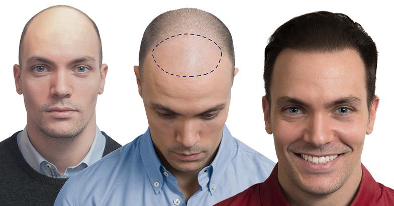 Le fasi del trapianto capelli