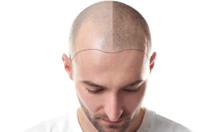 Tricopigmentazione – Che cos'è?