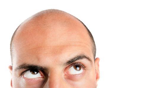 Trapianto di capelli: cicatrici e insuccessi.
