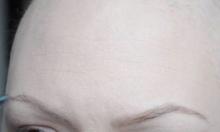 Chemioterapia e perdita dei capelli