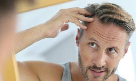 Calvizie, 5 tipi di alopecia