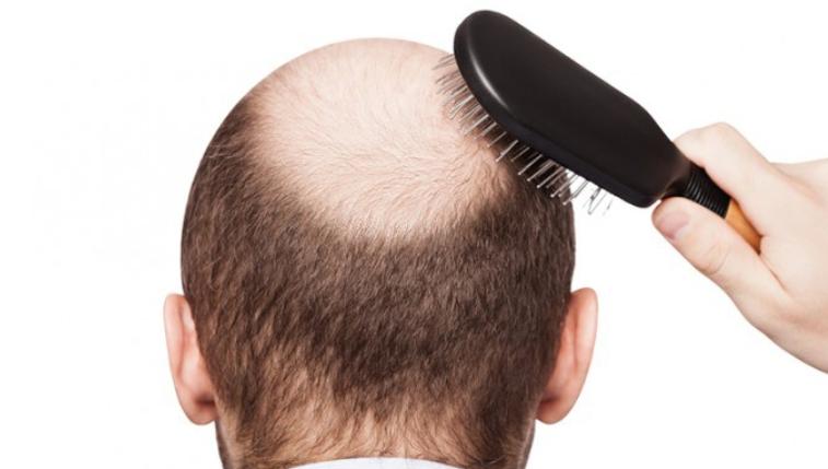 Trapianto capelli – rimedi antichi