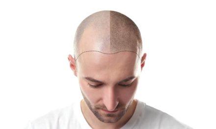 Che cos'è la transection nel trapianto di capelli?