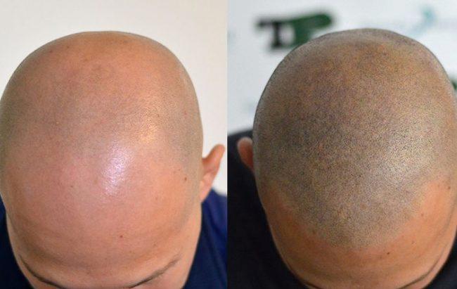 Trapianto capelli o tricopigmentazione?