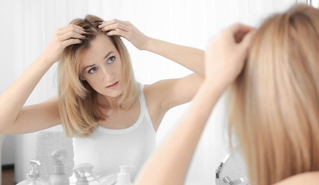 Alopecia androgenetica nella donna