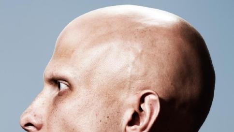 Proteggere i capelli durante la chemioterapia