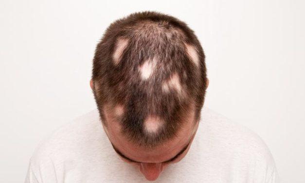 L'alopecia areata spia di altre malattie autoimmuni