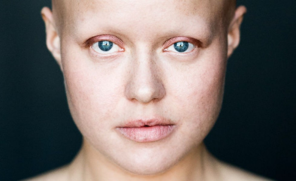 Caduta dei capelli – Alopecia Universale