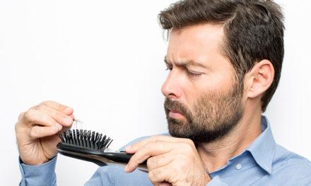 Perché gli uomini perdono i capelli?