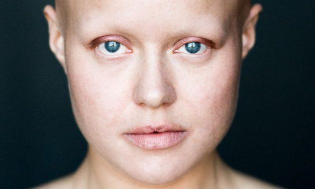 Caduta capelli – alopecia universale