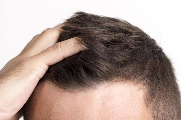 Alopecia androgenetica maschile. La tua è veloce o lenta?