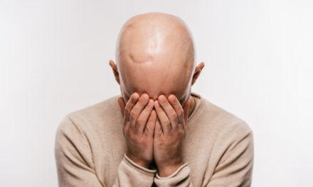 L'alopecia iatrogena – di cosa si tratta?