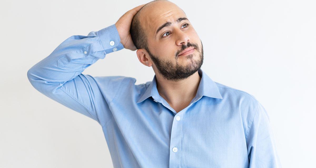 Il trapianto di capelli è definitivo?