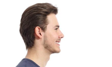 Il trapianto dei capelli
