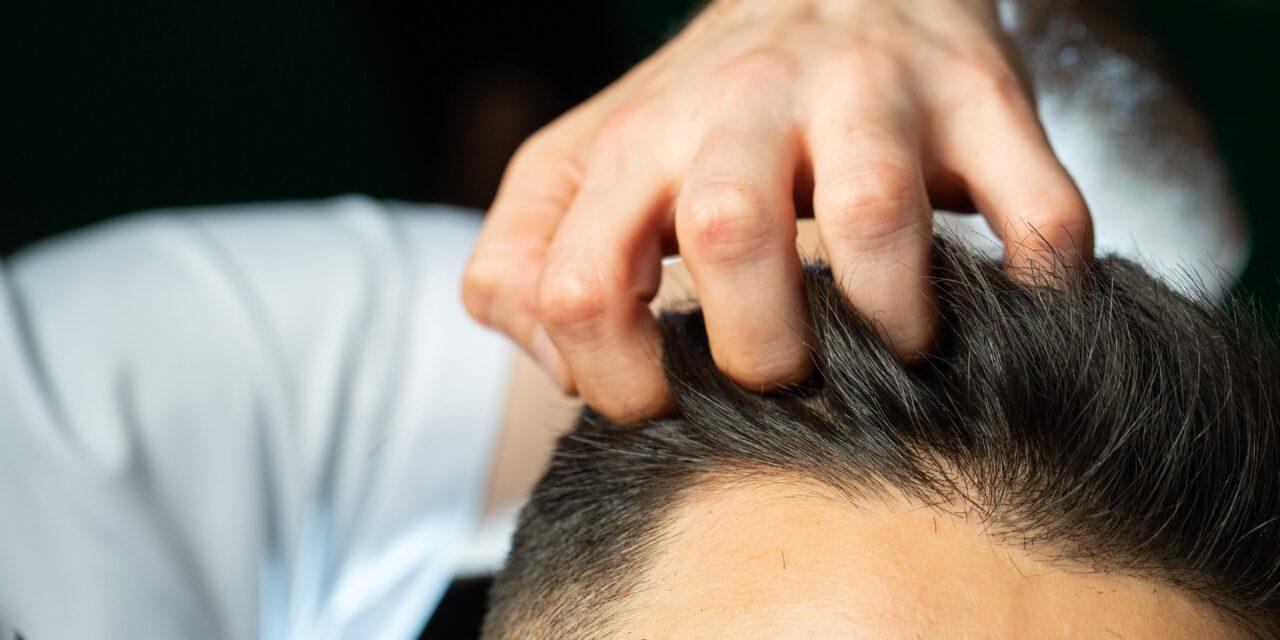 Trapianto di capelli, risultati ottimali con la tecnica FUE