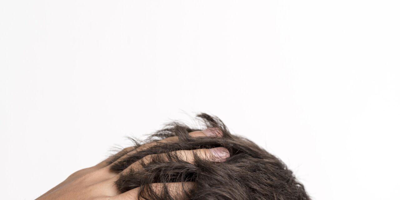 Trapianto di capelli, la tecnica più efficace.